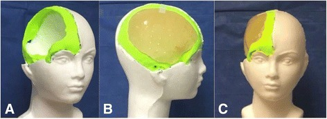 Cast plastic implant in 3D printed section of damaged skull.