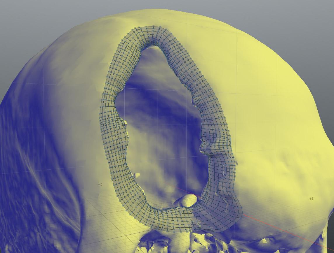 Refined inner lip of the skull's defect.