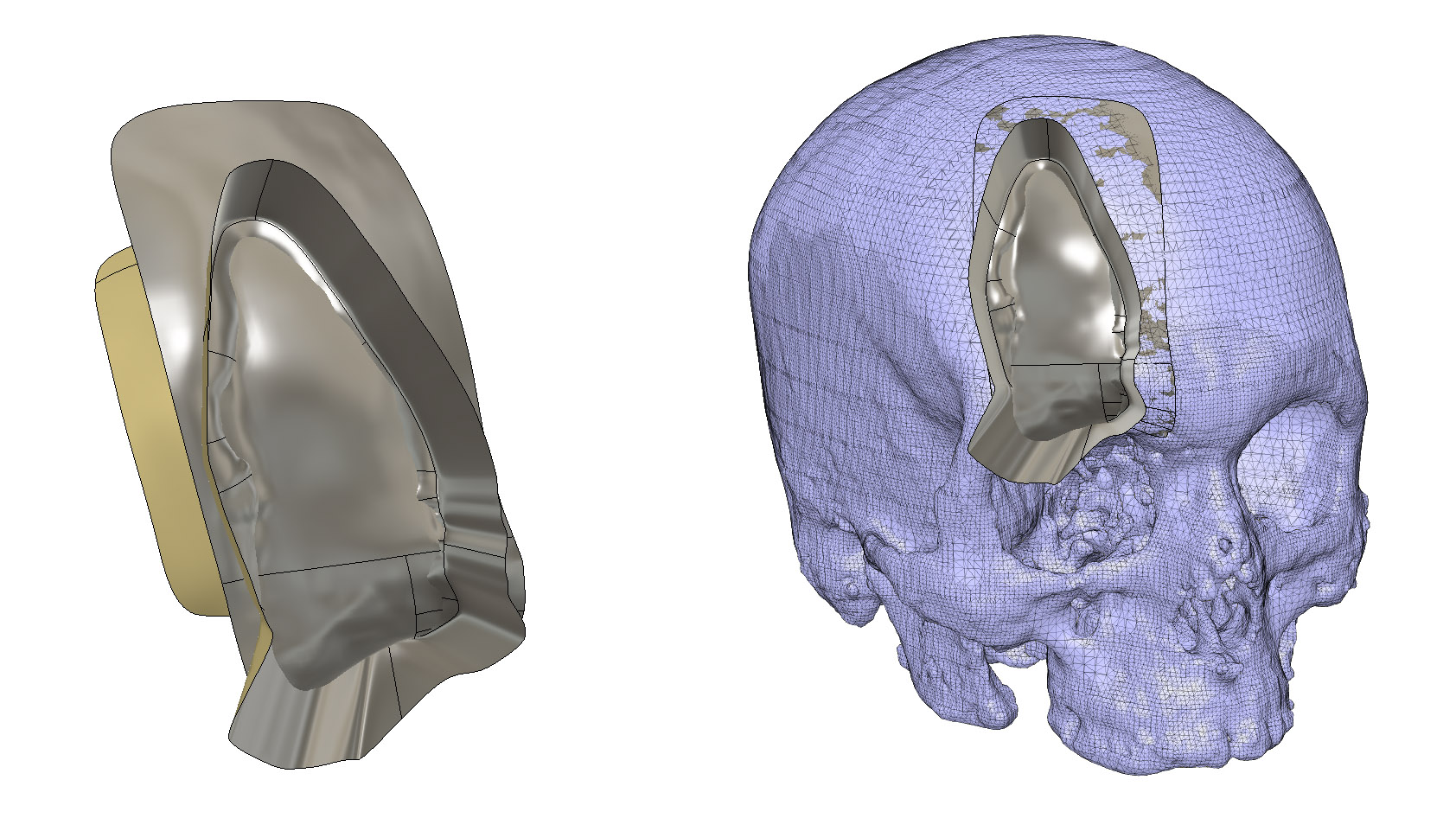 Inserting the skull and surfaces into Fusion 360.