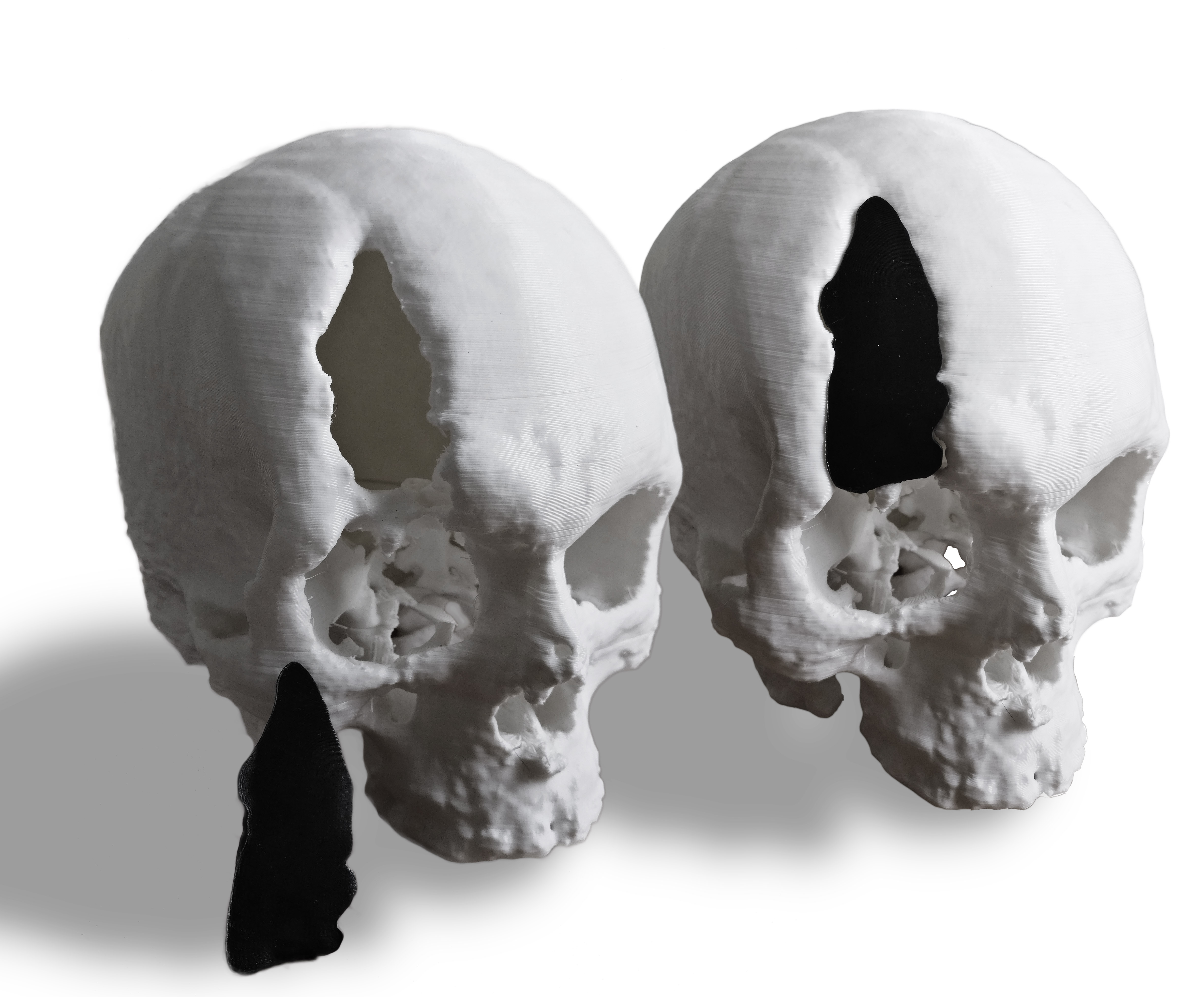 3D Prints of the skull and its implant.